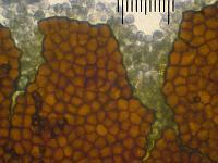Пукциниаструм пятнистый (Pucciniastrum areolatum)Эций и эциоспоры, х125 аммиачный раствор, внутренняя сторона